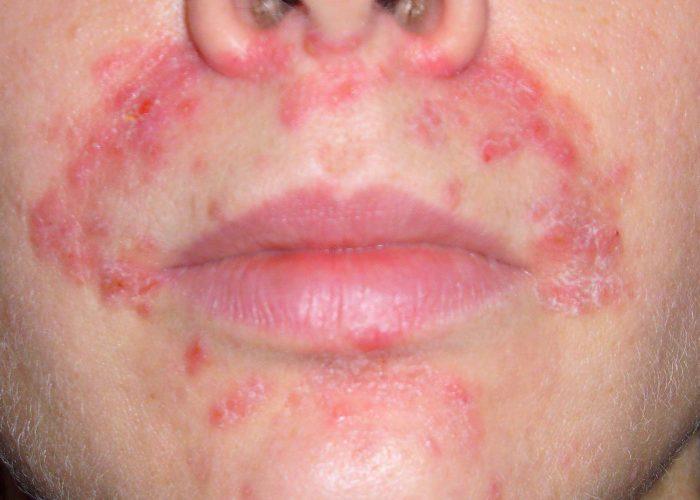 Контактный и атопический дерматит