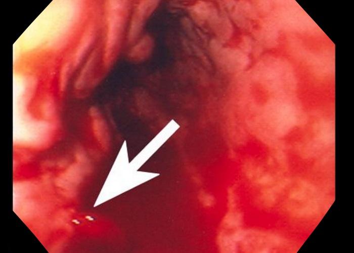 Кровотечение из любого отдела желудка