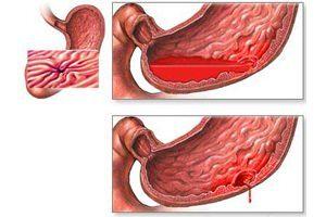 Кровотечение из желудка и кишечника