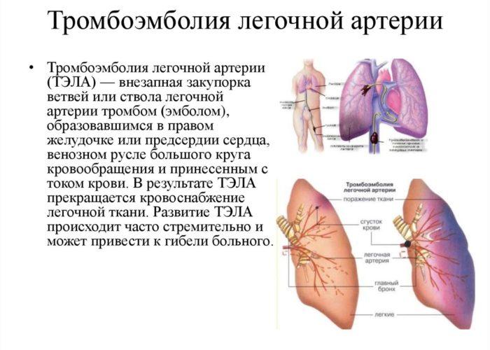 Легочная тромбоэмболия