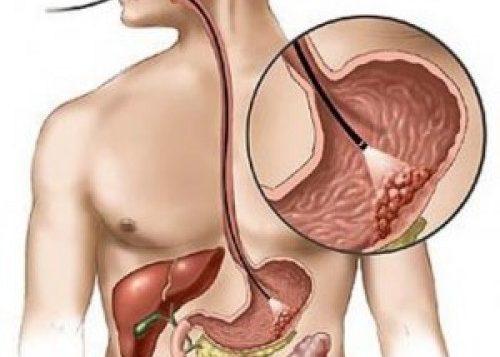 Наличие эрозивно-язвенных болезней