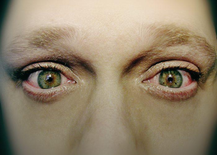 Непродолжительное чувство жжения в глазах сразу после закапывания