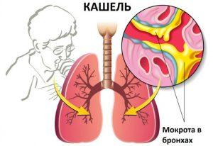 О чем свидетельствует кашель
