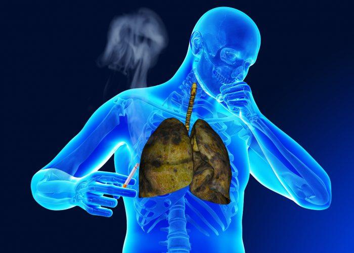 Обострение кашля курильщика
