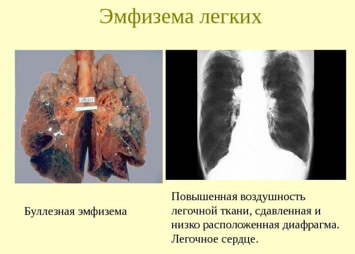 Обструктивная эмфизема легких