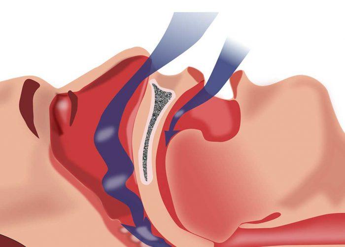 Ослабление приступов апноэ