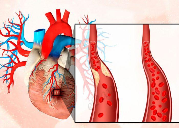 Острый инфаркт сердечной мышцы
