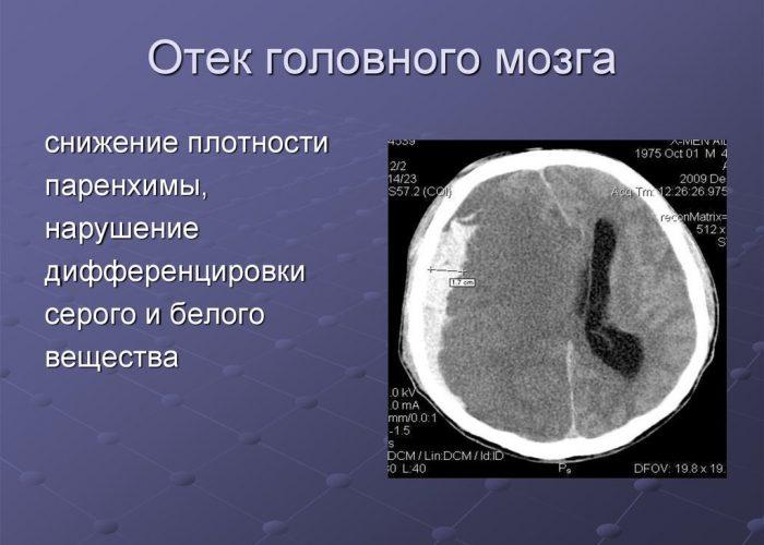 Отёком головного мозга