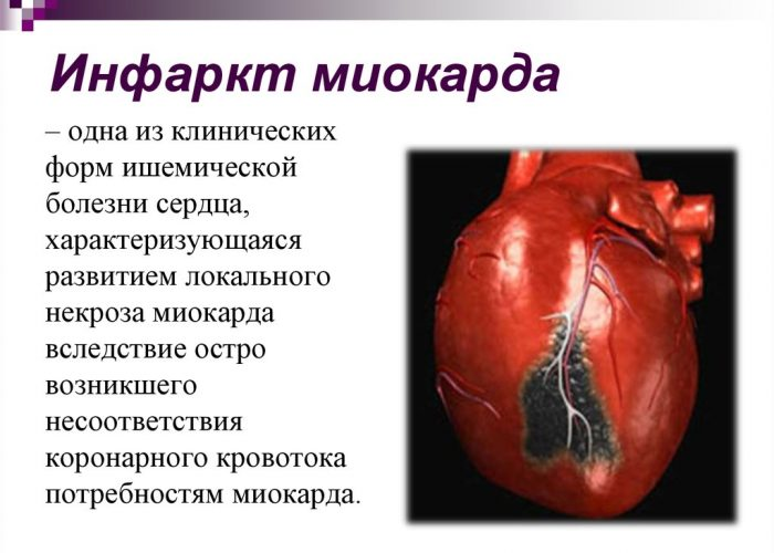 Пеенесенный инфаркт миокарда