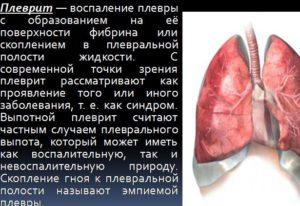 Плеврит