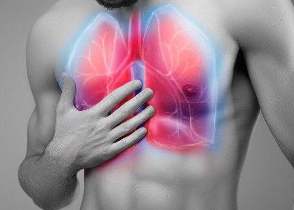 Пневмонии в острой стадии
