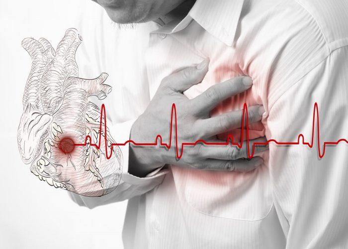 После перенесенного инсульта, инфаркта миокарда