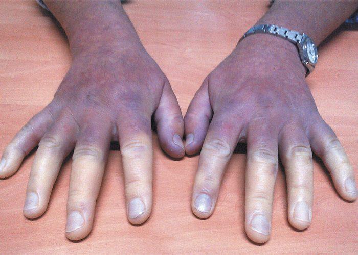 Потемнением кожных покровов