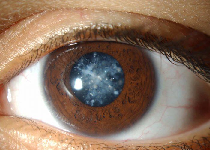 Повышение глазного давления