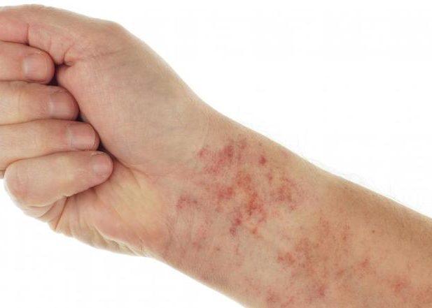 Появления признаков аллергической реакции