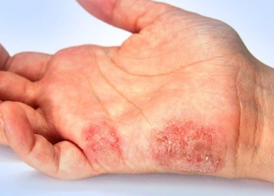 При инфекциях кожных покровов и мягких тканей