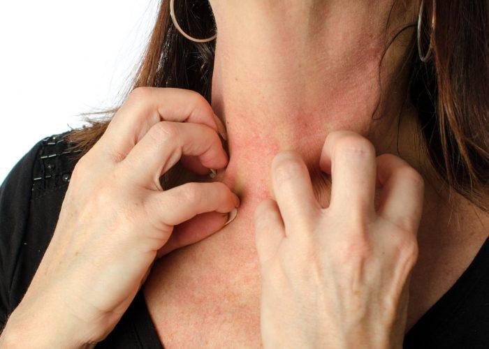 При наличии аллергии к составляющим препарат