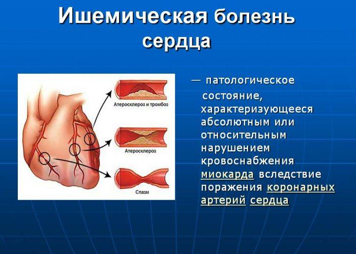 При наличии ишемической болезни сердца