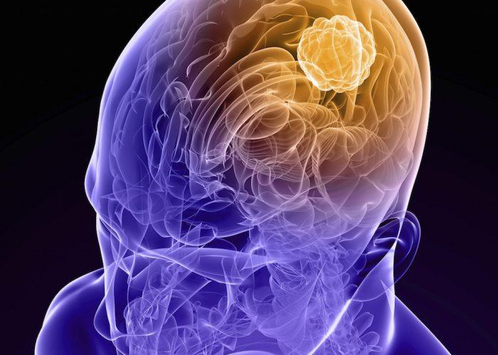 При опухолевых патологиях