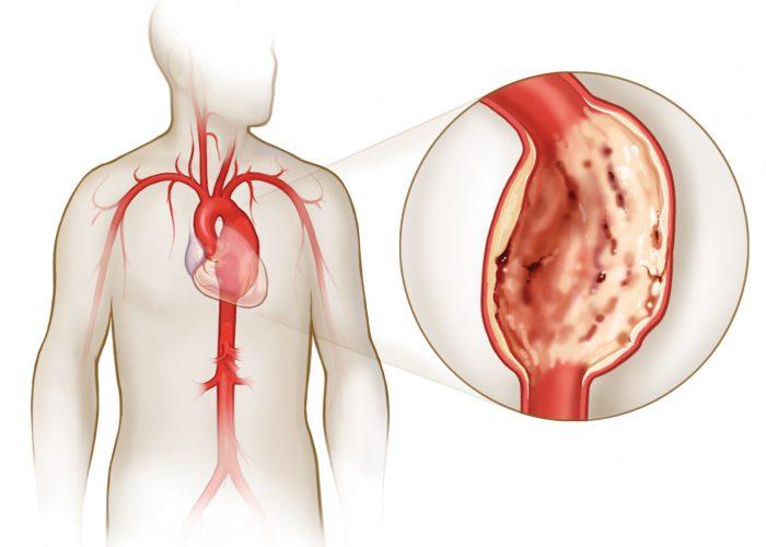При повышенном артериальном давлении в аорте