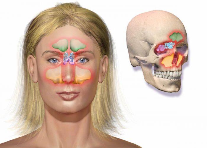 При воспаление придаточных пазух нос