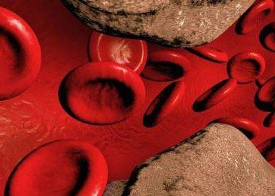 Распространенным атеросклерозом кровеносных сосудов;