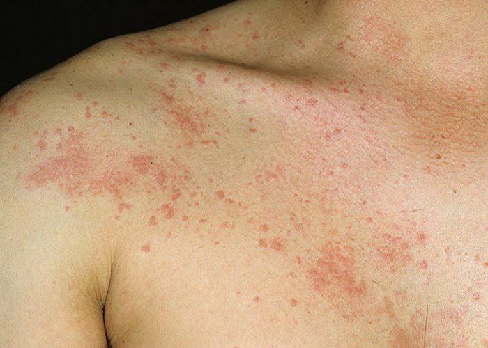 Развитие аллергических реакций, сопровождающихся крапивницей