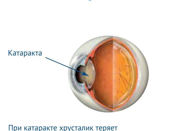 Риск развития катаракты