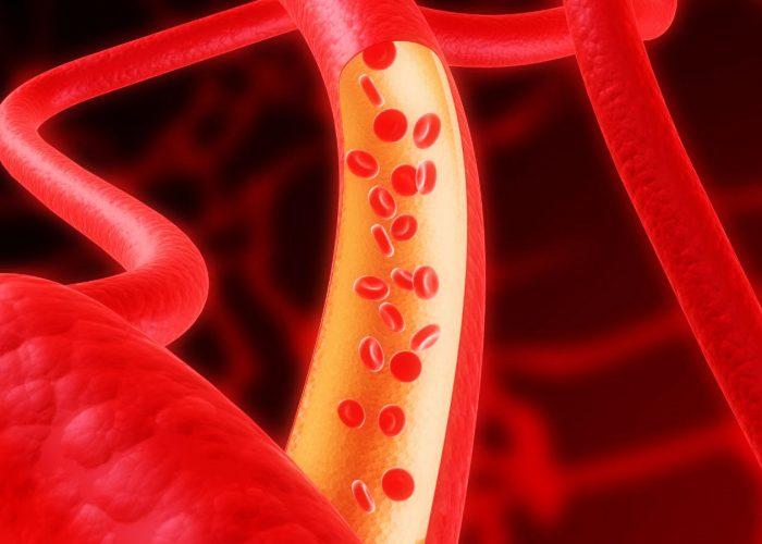 Снижение тонуса кровеносных сосудов