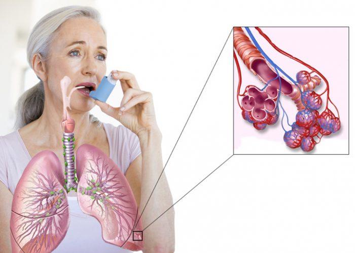 Снятие спазма у больных бронхиальной астмой