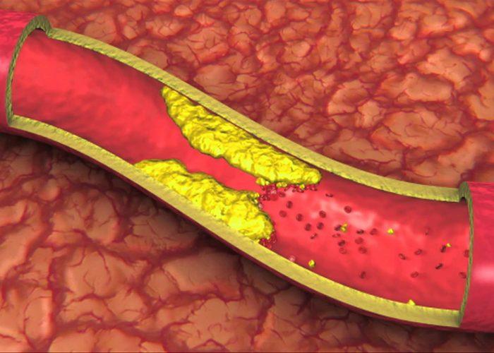 Сужение артерий
