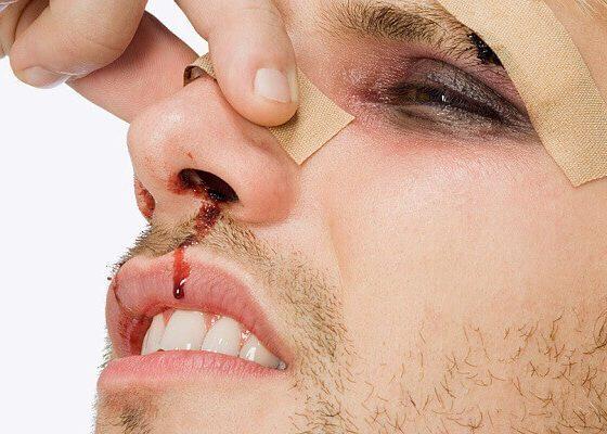 Травмы носовой полости