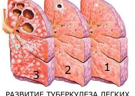 Туберкулезом легких