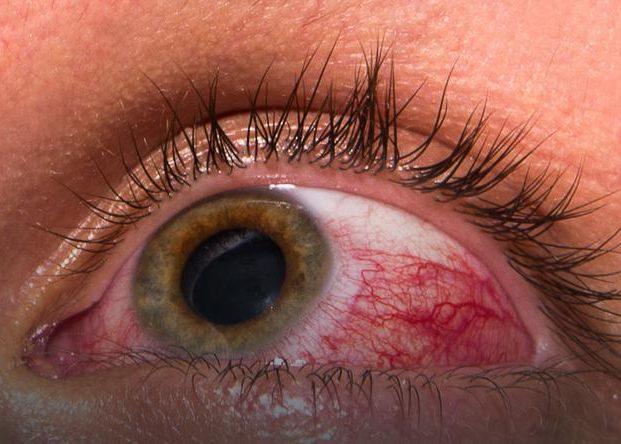 Увеличение глазного давления