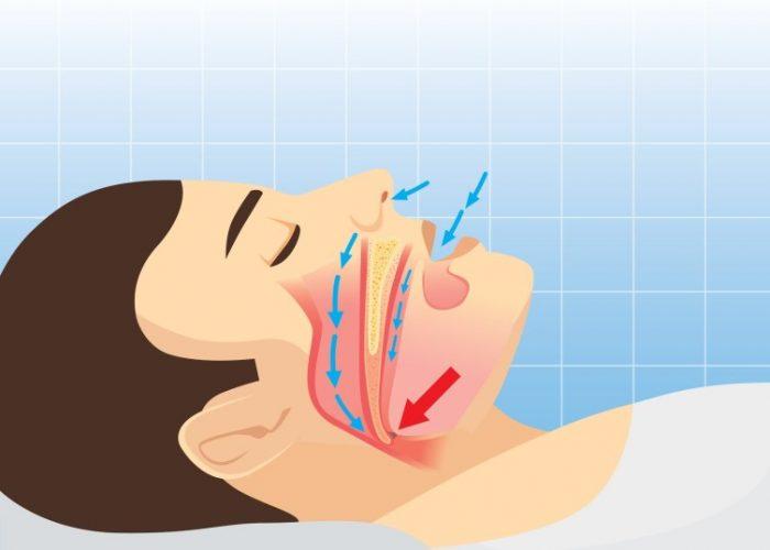 Внезапные остановки дыхания во время сна – апноэ