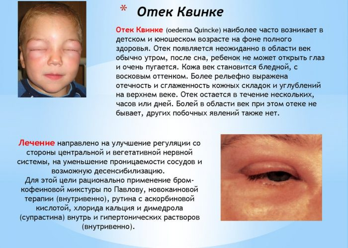 Возможны аллергические реакции, такие как Отек Квинке