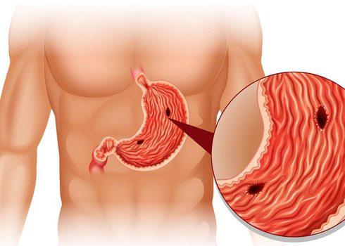 Язва желудка и кишечника в острой фазе