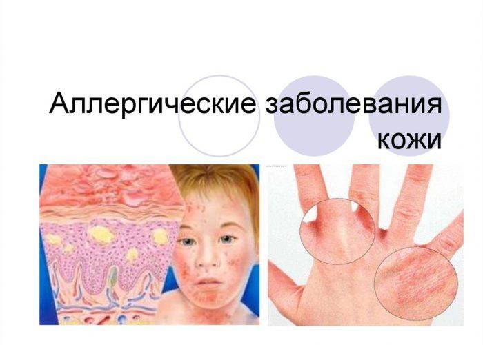 Заболевания кожи
