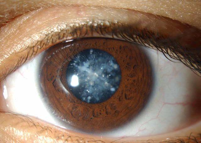 Задняя субкапсулярная катаракта