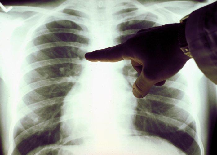 Затормаживание воспалительных процессов, происходящих в легких и бронхах