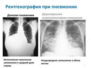Рентгенография при пневмонии