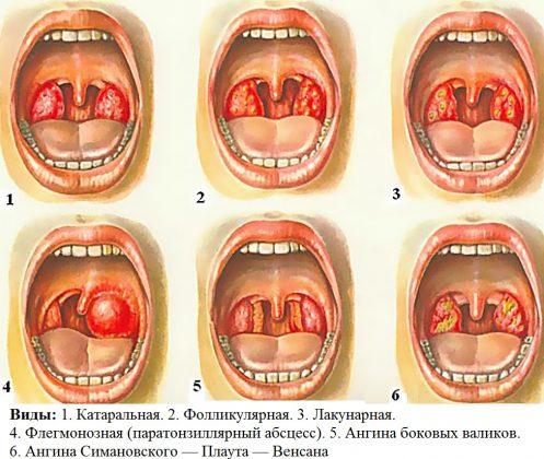 Виды воспаления миндалин