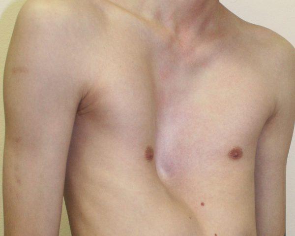 Эмфизематозная грудная клетка
