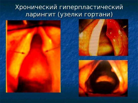 Гиперпластический ларинготрахеит