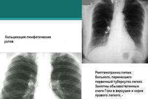 Кальцинация лёгких