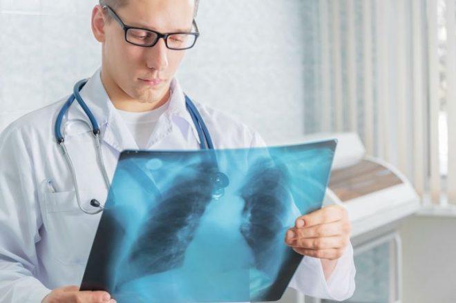 Можно ли делать флюорография при грудном вскармливании