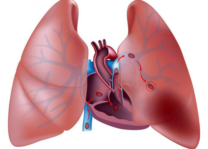 Нарушения структуры аорты