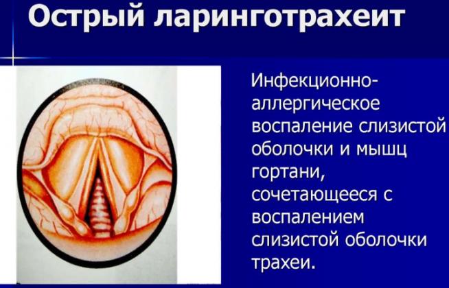 Острый ларинготрахеит