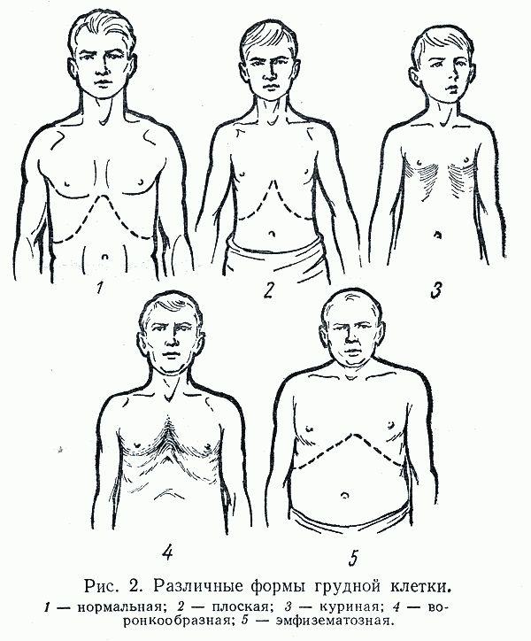 Плоская деформация грудной клетки