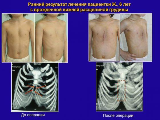 Расщелина грудной клетки